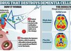 Possible Alzheimer's Disease Relief